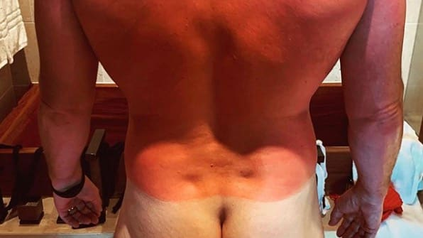 Chris-Pratt-hat-in-den-Flitterwochen-die-Sonnencreme-vergessen-Ich-bin-vielleicht-ein-bisschen-knusprig-geworden-