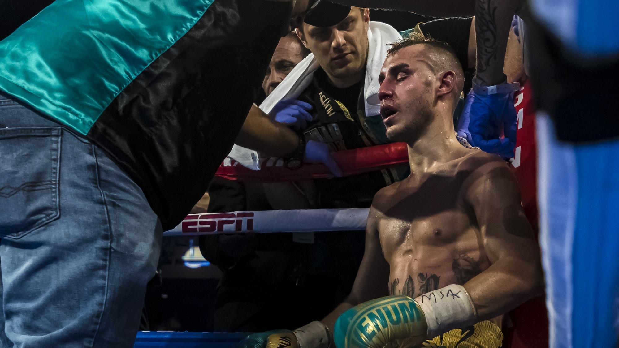 Mit Hirnblutung: Russen-Boxer stirbt nach 260 schweren Treffern