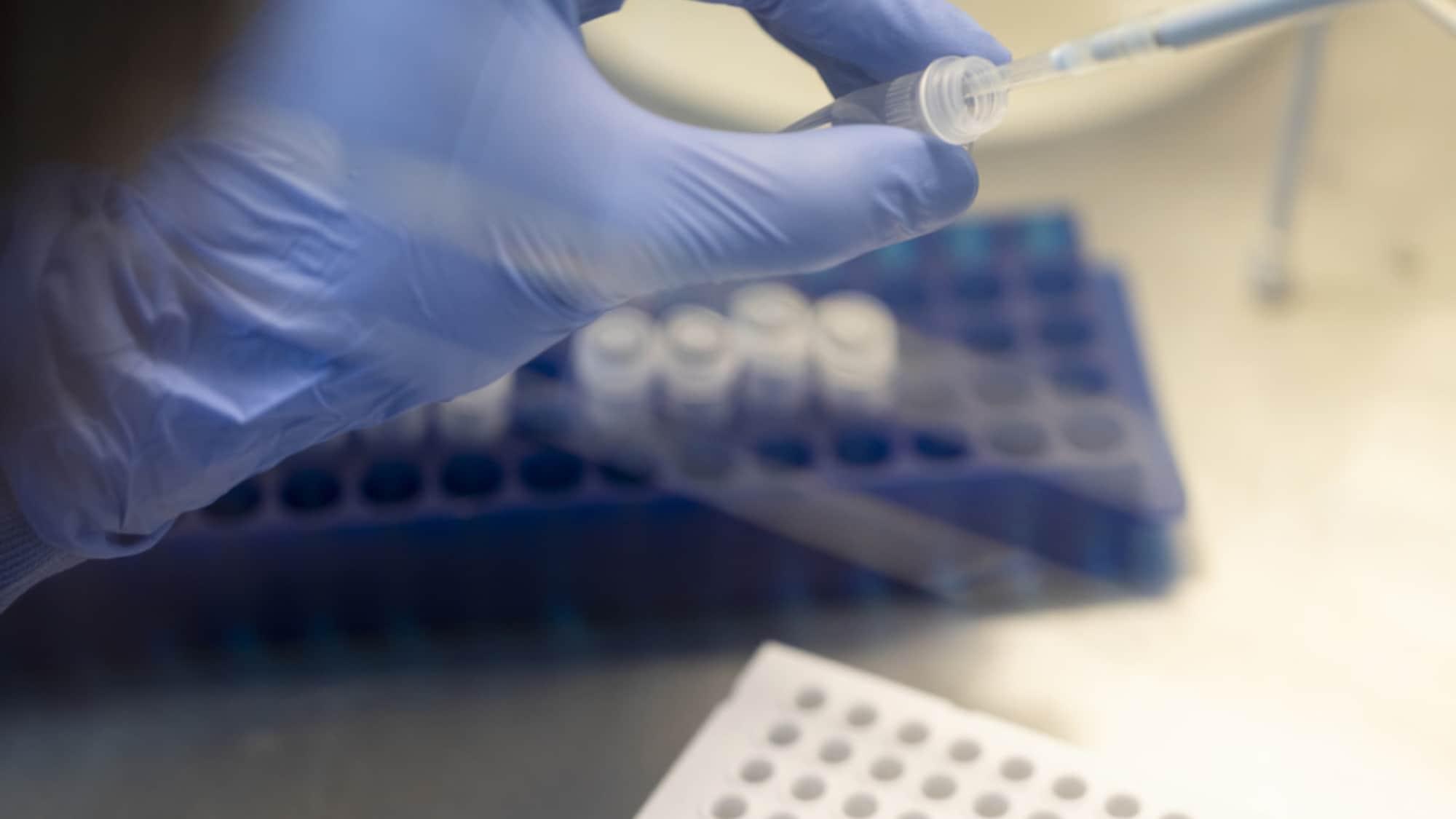 Coronavirus: Bund verschärft Meldepflicht wegen Coronavirus