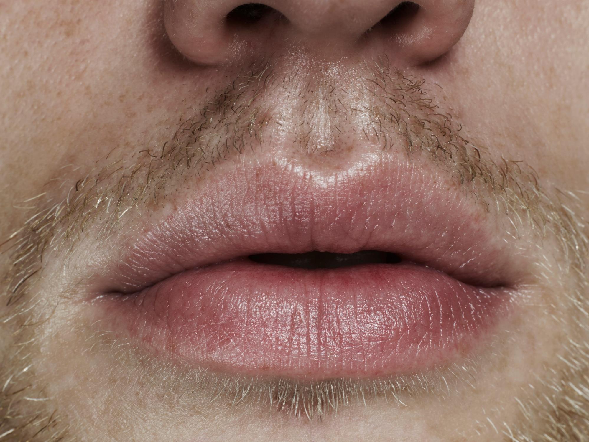 Lippe trockene stelle an der Trockene Lippen