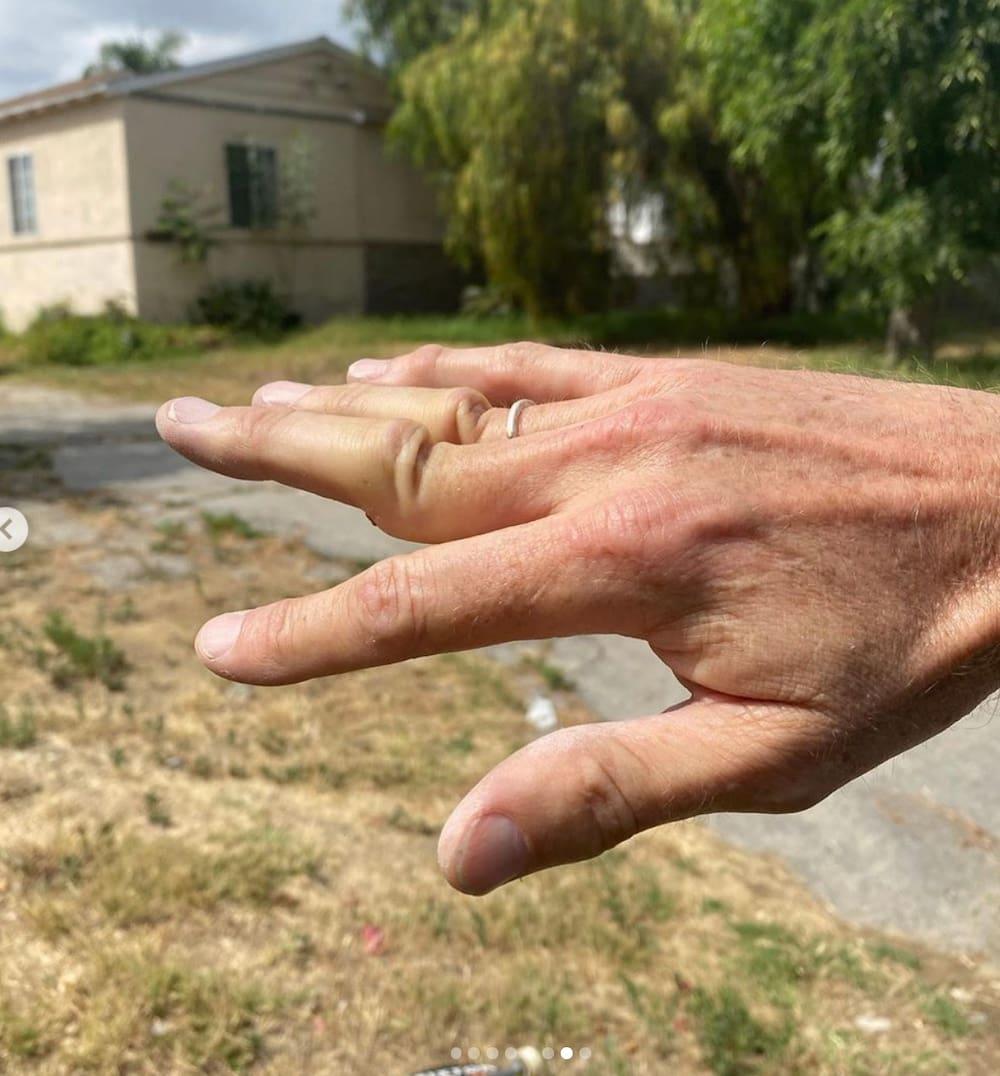 Finger Ausgerenkt