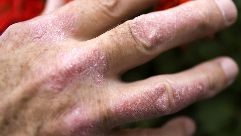 Botenstoff schützt vor Schuppenflechte