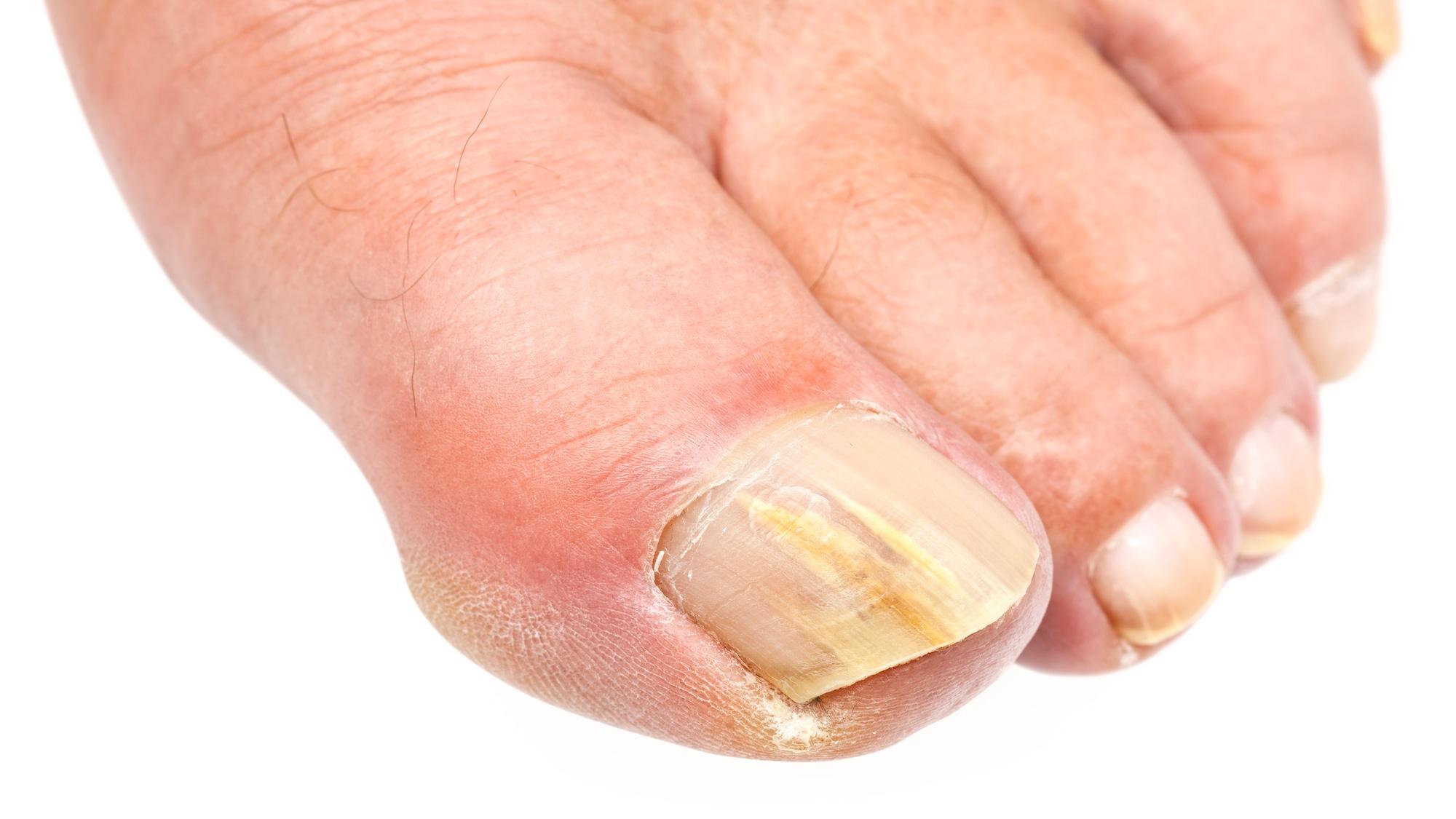 Die besten Mittel: Was hilft wirklich gegen Nagelpilz?